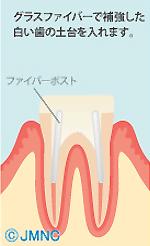 グラスファイバーで補強した白い歯の土台を入れます。